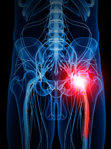 Sciatica: Causes, Symptoms, Treatments, & More